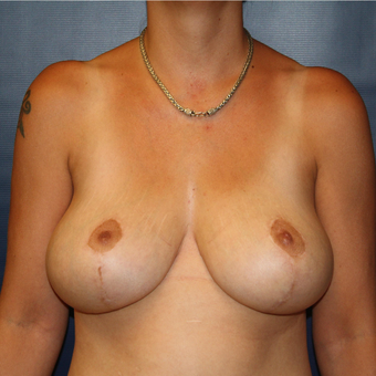 35-44 year old woman treated with Breast Reduction after 3033269