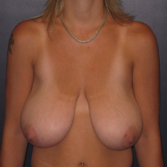 35-44 year old woman treated with Breast Reduction before 3033269