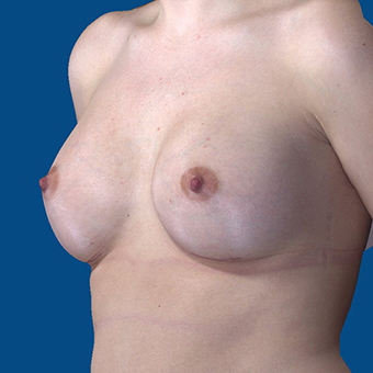 18-24 year old woman treated with Breast Augmentation after 3644388