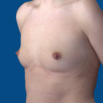 18-24 year old woman treated with Breast Augmentation before 3644388