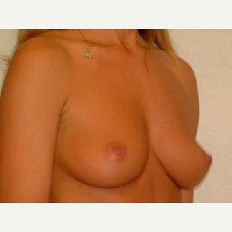 40 y/o Transaxillary Submuscular Breast Augmentation before 3066449