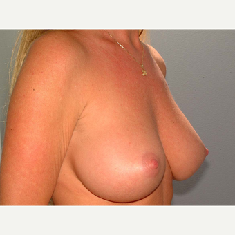 40 y/o Transaxillary Submuscular Breast Augmentation after 3066449