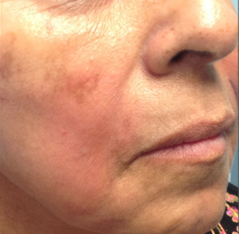 Female Patient Treated with Radiesse after 1044915