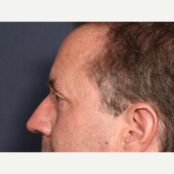 55-64 year old man treated with Eyelid Surgery  (view 2 of 2) after 3809848