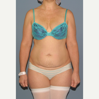 35-44 year old woman treated with Tummy Tuck before 3531098