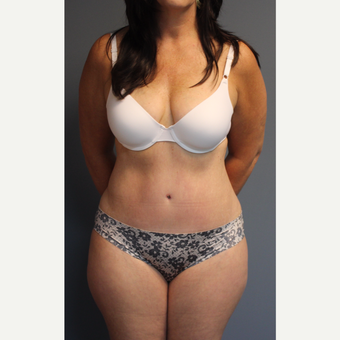 35-44 year old woman treated with Tummy Tuck after 3531098
