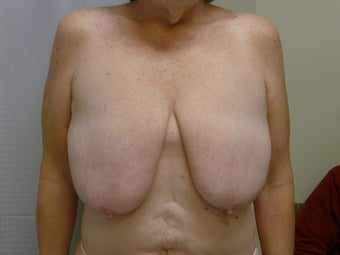 Ultimate Breast Lift - No implants - No Vertical Scar before 1181296