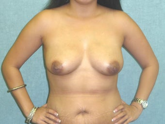 Fat transfer to the Breast - Natural Breast Augmentation after 420136