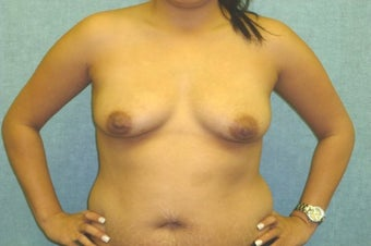 Fat transfer to the Breast - Natural Breast Augmentation before 420136