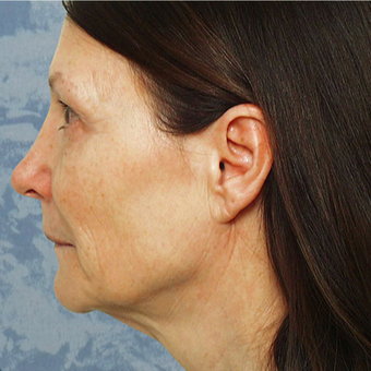 Facelift before 3126358