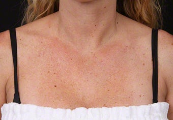 Laser for Freckles and Sun Damage on Chest before 1357703