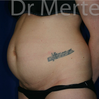 Tummy Tuck before 3599580