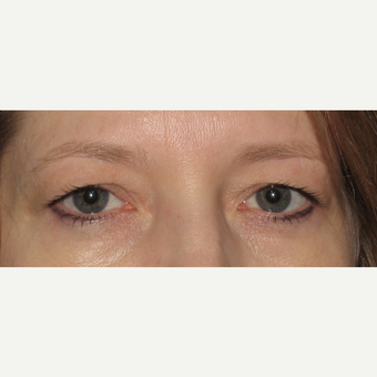 35-44 year old woman treated with Eyelid Surgery before 3657015