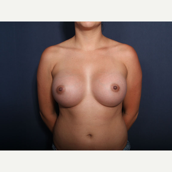 25-34 year old woman treated with Breast Augmentation (view 1 of 2) after 3333164