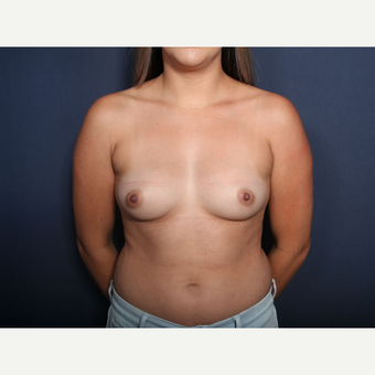 25-34 year old woman treated with Breast Augmentation (view 1 of 2) before 3333164