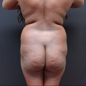 25-34 year old woman treated with Liposuction before 3363914