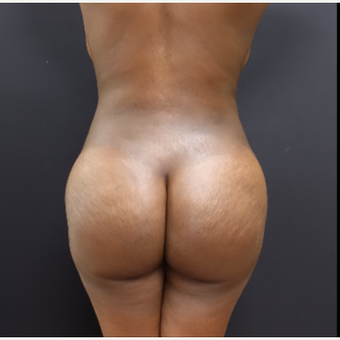 25-34 year old woman treated with Liposuction after 3363914