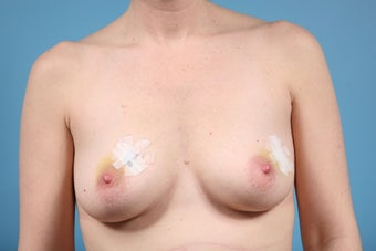 Breast Reconstruction after Bilateral Mastectomy before 553674