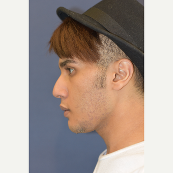18-24 year old man treated with Rhinoplasty before 3724883