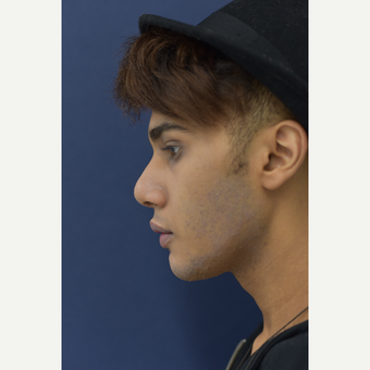 18-24 year old man treated with Rhinoplasty after 3724883