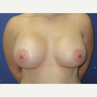 25-34 year old woman treated with Breast Augmentation after 3695273