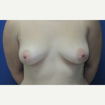 25-34 year old woman treated with Breast Augmentation before 3695273
