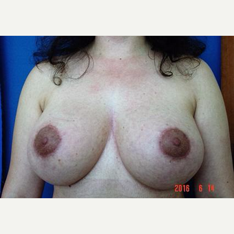 Breast Lift, Aug, Remove and Replace Implants after 3232876