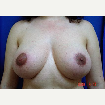 Breast Lift, Aug, Remove and Replace Implants before 3232876