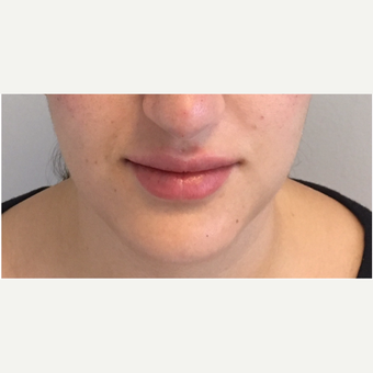 25-34 year old woman treated with Juvederm after 3331271