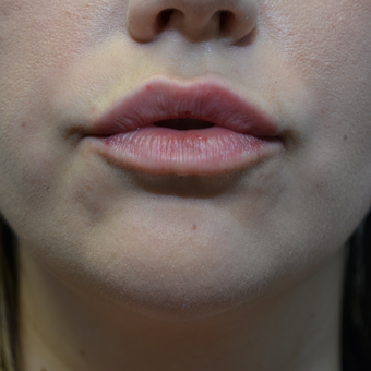 25-34 year old woman's lips treated with Volbella after 3695236