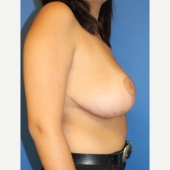 18-24 year old woman treated with Breast Reduction after 3402048