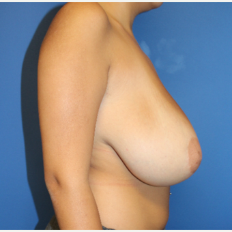 18-24 year old woman treated with Breast Reduction before 3402048