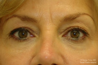 55 year-old woman underwent Restylane injections to blend away eyebags and give a virtual cheeklift. after 1493290