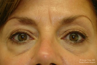 55 year-old woman underwent Restylane injections to blend away eyebags and give a virtual cheeklift. before 1493290