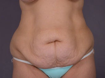 Tummy Tuck  before 306313