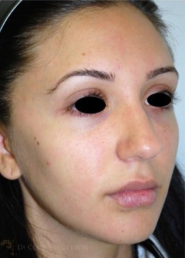 18-24 year old woman treated with Rhinoplasty before 3259466