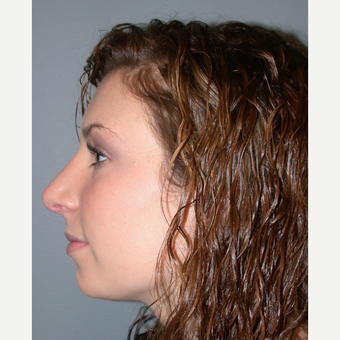 18-24 year old woman treated with Rhinoplasty after 3692247