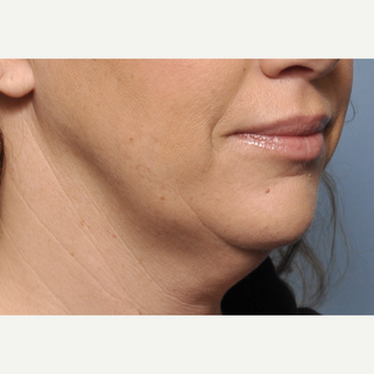 35-44 year old woman treated with Facelift before 3030527