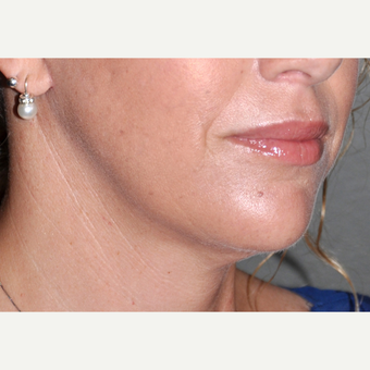 35-44 year old woman treated with Facelift after 3030527