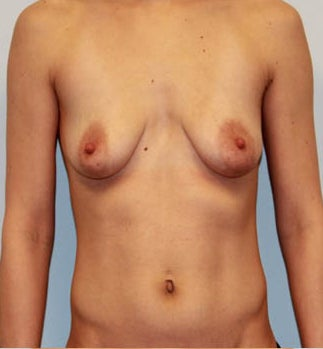 Dual Plane III (submuscular) Augmentation with Circumvertical Mastopexy before 932594
