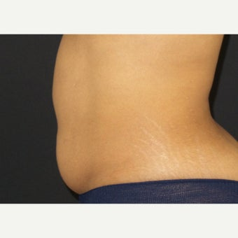 35-44 year old woman treated with CoolSculpting before 2407301
