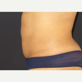 35-44 year old woman treated with CoolSculpting after 2407301