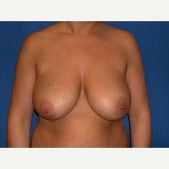 35-44 year old woman treated with Breast Lift before 3009156