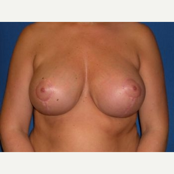 35-44 year old woman treated with Breast Lift after 3009156