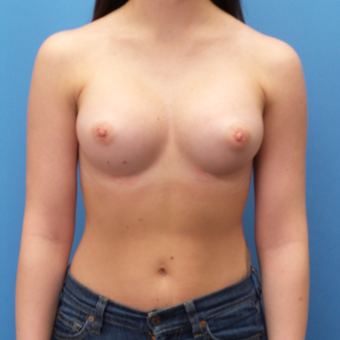Breast Augmentation after 3338005