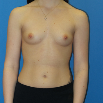 Breast Augmentation before 3338005