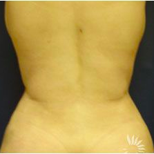 Slim Lipo after 3056245