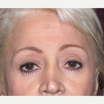 Eyelid Surgery after 3123683
