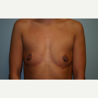 35-44 year old woman treated with Breast Augmentation before 3564273