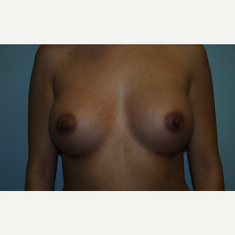 35-44 year old woman treated with Breast Augmentation after 3564273